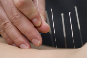 Treatment by acupuncture.